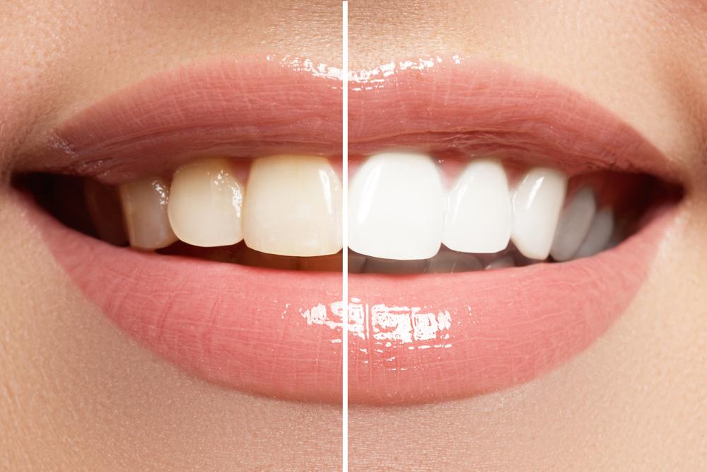evita dientes manchas d-natural